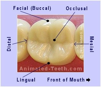 Occlusal Buccal filling